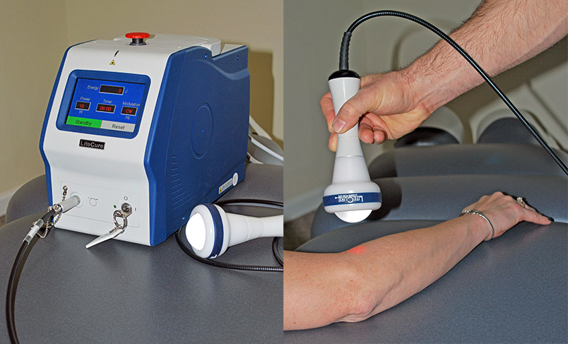LiteCure laser therapy